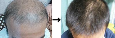 この画像は当日発表される症例改善の一例です。左がBefore、右がAfterです。この間、2ヶ月が経過しています。これが免疫美容です